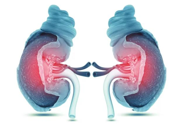 干细胞治疗26例慢性肾病患者临床疗效观察