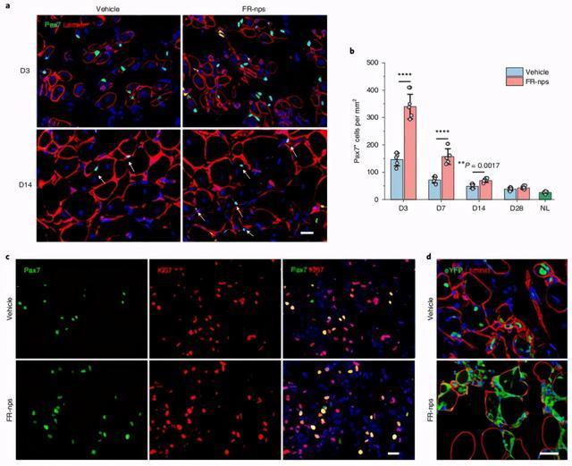 攻克单能干细胞疗法难题!科学家实现肌肉干细胞体内外高效扩增