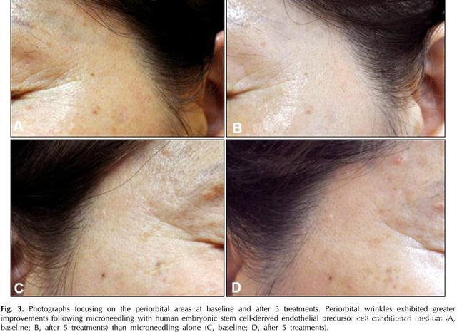 专家共识已出台!干细胞在整形修复美容领域发挥了哪些作用?