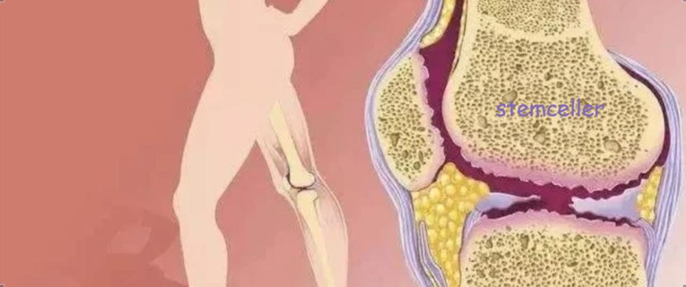 组织修复与再生,干细胞扮演着什么角色