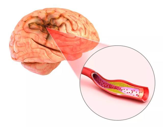 研究发现,干细胞这三大机制可促进脑缺血后神经修复