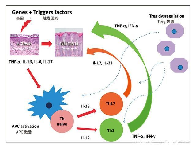 造血干细胞移植治疗银屑病研究进展
