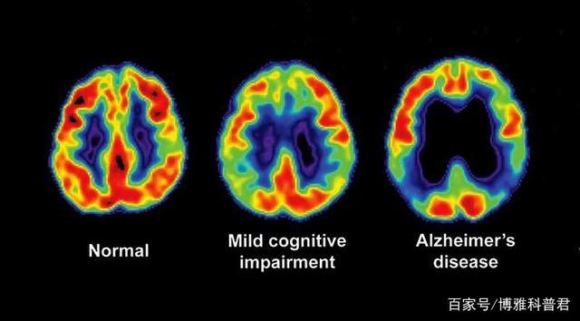 新临床试验证明:干细胞能减缓老年痴呆进展