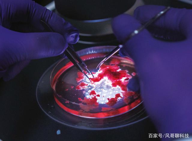 科学家发现癌细胞带有干细胞特性,治愈癌症或许指日可待!