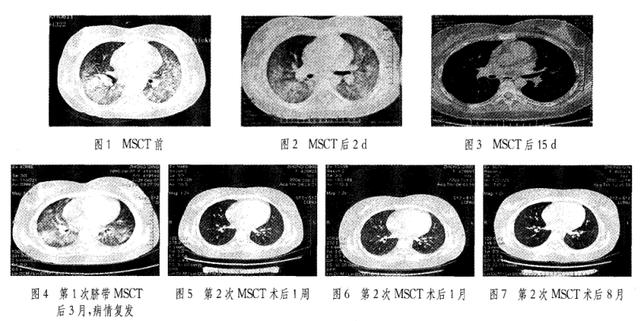 自身免疫性疾病干细胞移植的临床案例!