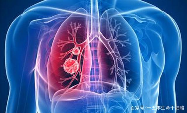 好消息!又一个针对肺纤维化的干细胞药品获国家临床试验默许