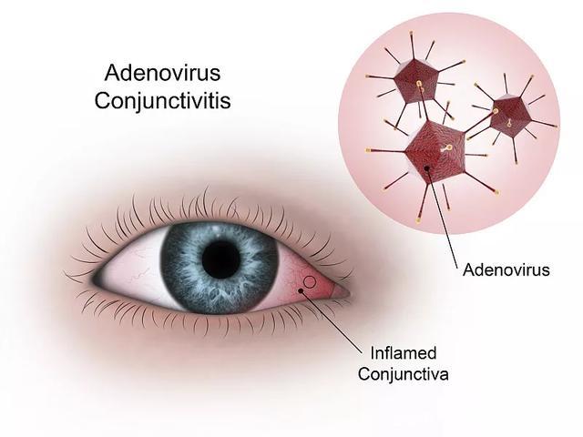 临床案例:98例干细胞移植对眼表疾病的临床效果分析