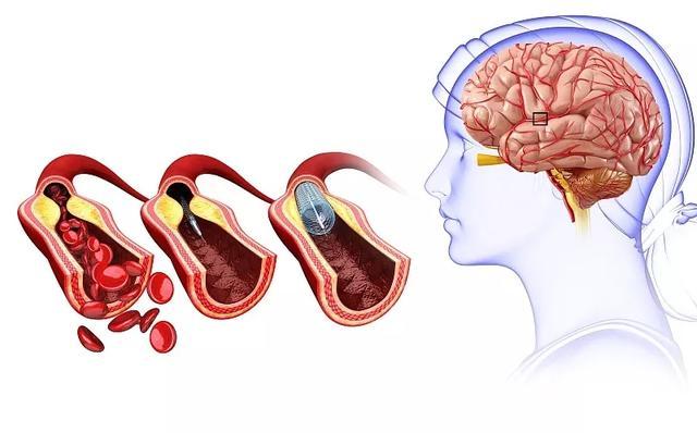 64例干细胞移植联合高压氧成为改善脑卒中后遗症的新途径