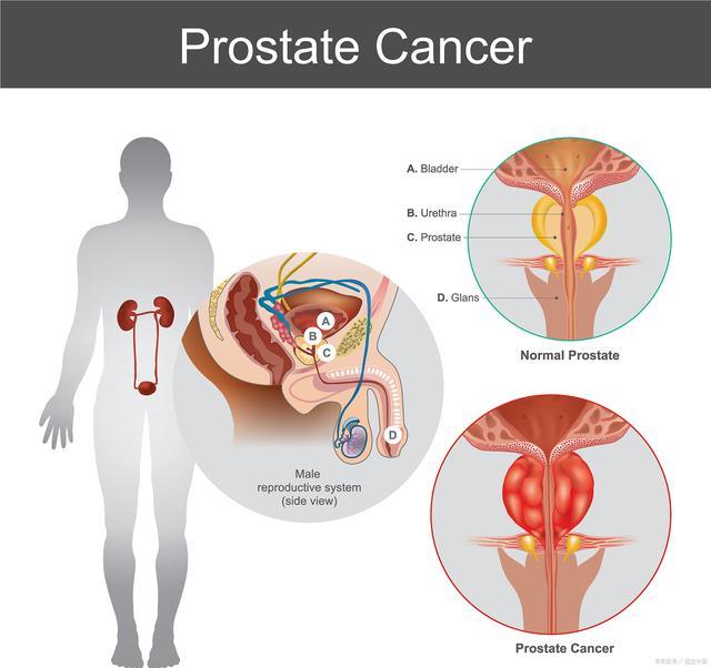 为什么干细胞移植能够治疗前列腺炎?