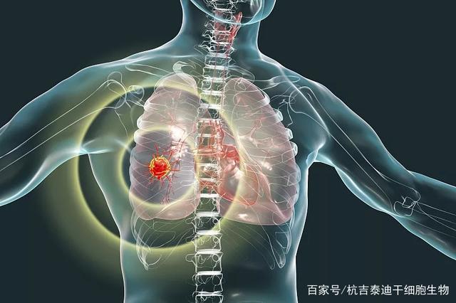 全球首个治疗慢阻肺的干细胞药品获批,即将启动II期临床