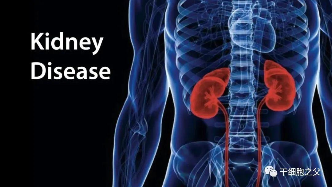 干细胞成为治疗4类肾病的理想选择