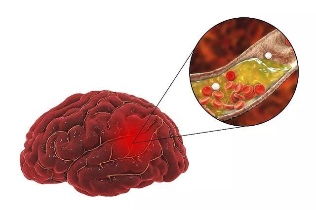 新发现,干细胞治疗缺血性脑卒中的多重作用机制