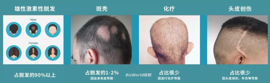 用iPS干细胞再生毛囊,治疗脱发,这家初创公司获1500万美元融资
