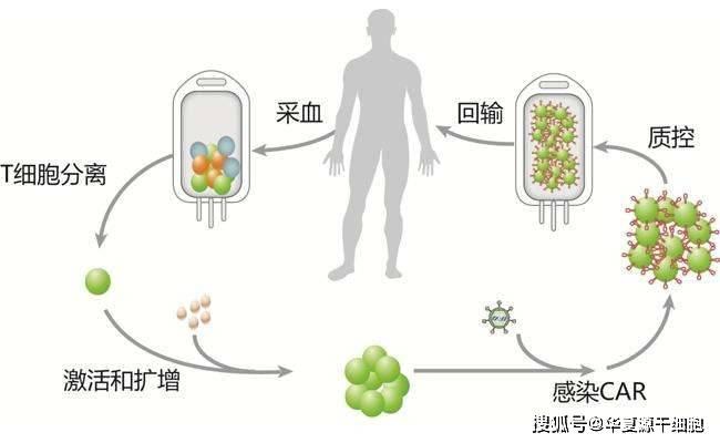回输、疫苗、药物,抗癌的免疫细胞疗法,你知道多少种?