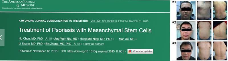 干细胞治疗银屑病突破性进展!