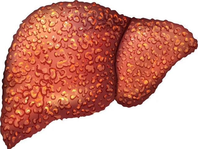 65例干细胞移植改善肝硬化的疗效及安全性评估