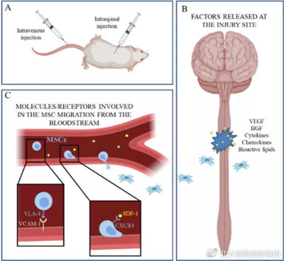 国内临床转化:多名瘫痪病人正接受干细胞治疗,并重新站了起来