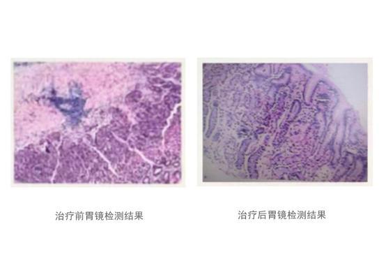 慢性胃炎反复发作?干细胞疗法有效率高达92%