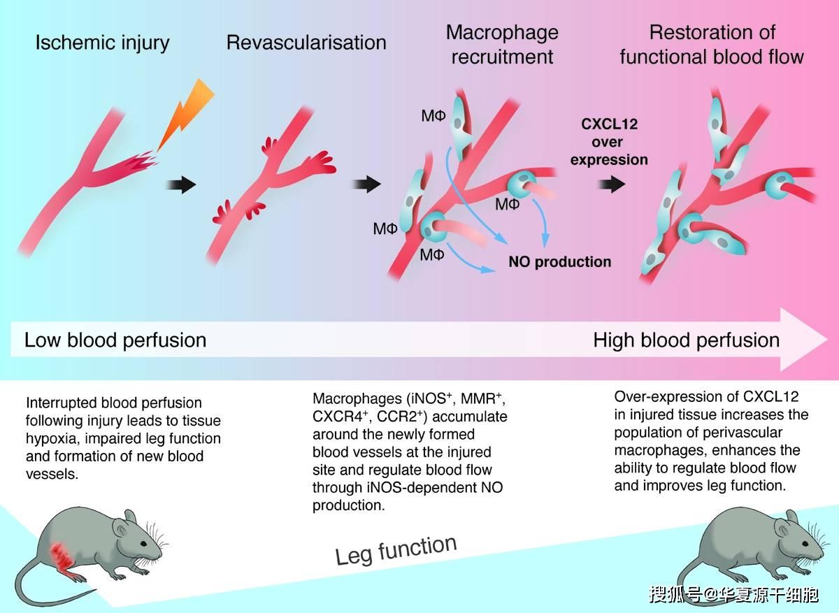 心血管疾病治疗新思路,免疫细胞疗法是如何调节血流的?