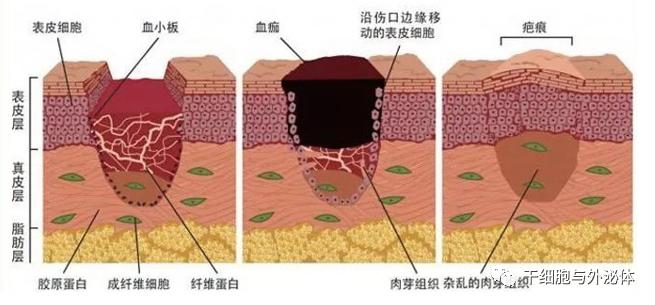 间充质干细胞外泌体在皮肤再生中的作用