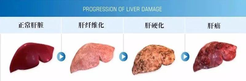 【招募】武汉大学人民医院|人脐带源间充质干细胞治疗乙型病毒性肝炎肝硬化(代偿期)随机双盲对照临床研究
