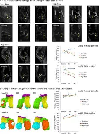 全球首个膝骨关节炎自体干细胞新药:预计明年在韩国上市