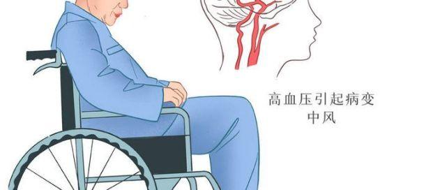 """干细胞治疗三大优势,中风病人重新""""站起来"""""""