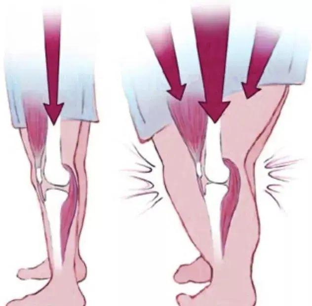 不同来源干细胞移植治疗骨关节炎的临床