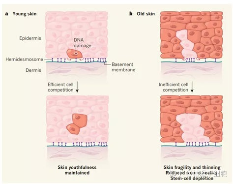 双盲、随机对双盲、照研究证实:脂肪干细胞上清液可减少皮肤皱纹